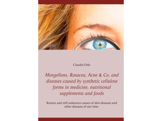 Morgellons, Rosacea, Acne & Co. and Diseases caused by synthetic cellulose forms in medicine, nutritional supplements and foods | Known and unknown causes of skin diseases and other diseases of our time | Artikelnummer: 0000003